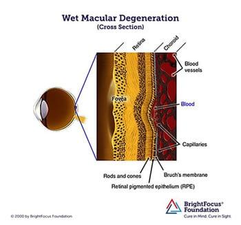 Wet Macular Degeneration