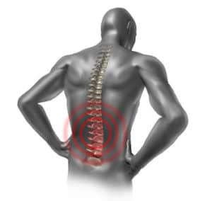 Back pain and Acupuncture Hamilton