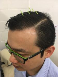 Zhu's Scalp Acupuncture
