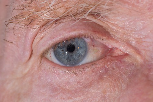 Acupuncture for glaucoma and other eye conditions