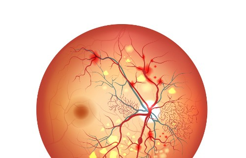 Acupuncture for diabetic retinopathy