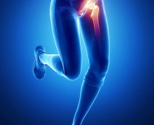 acupressure for hip groin pain