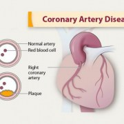 acupressure for coronary artery disease