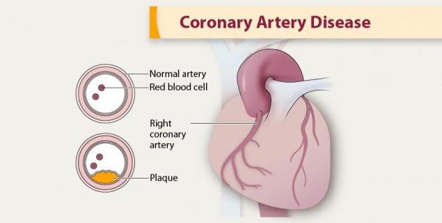 acupressure for coronary artery disease