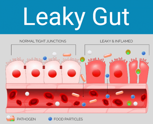 acupressure for leaky gut symptoms