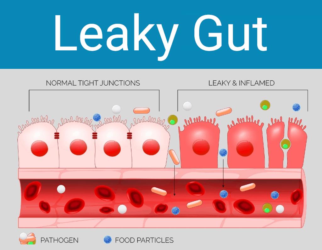 acupressure for leaky gut symptoms