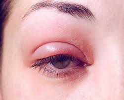Acupressure for swollen eyelids