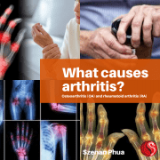 What Causes Arthritis?