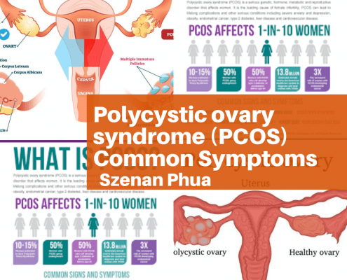 Polycystic ovary syndrome (PCOS) Common Symptoms