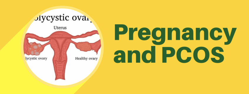 Pregnancy and PCOS