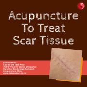 Acupuncture to treat Scar tissue
