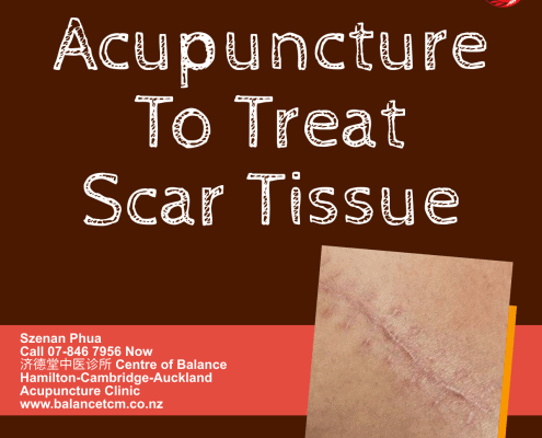 Acupuncture to treat Scar tissue