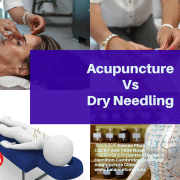 Acupuncture verses Dry needling